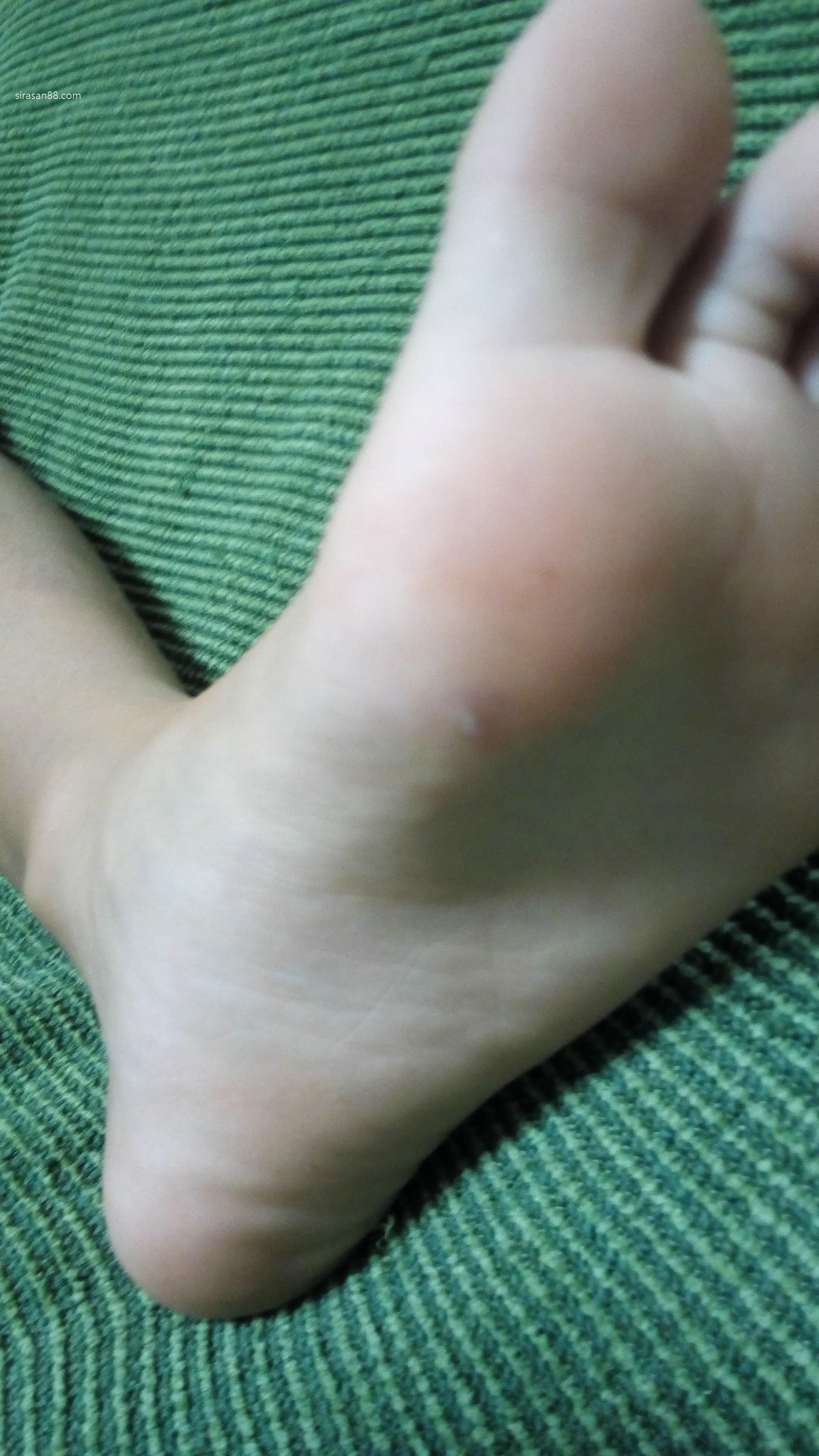 痛い 足 裏 イボ